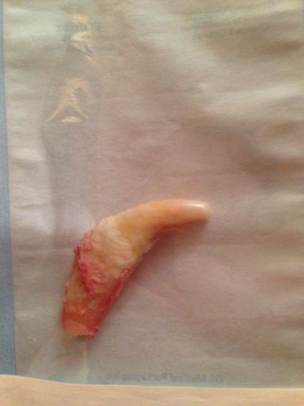 Tooth removed